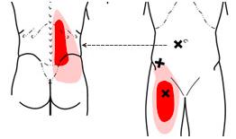 Triggerpointtherapie - ilio psoas - Massagepraktijk Jansen